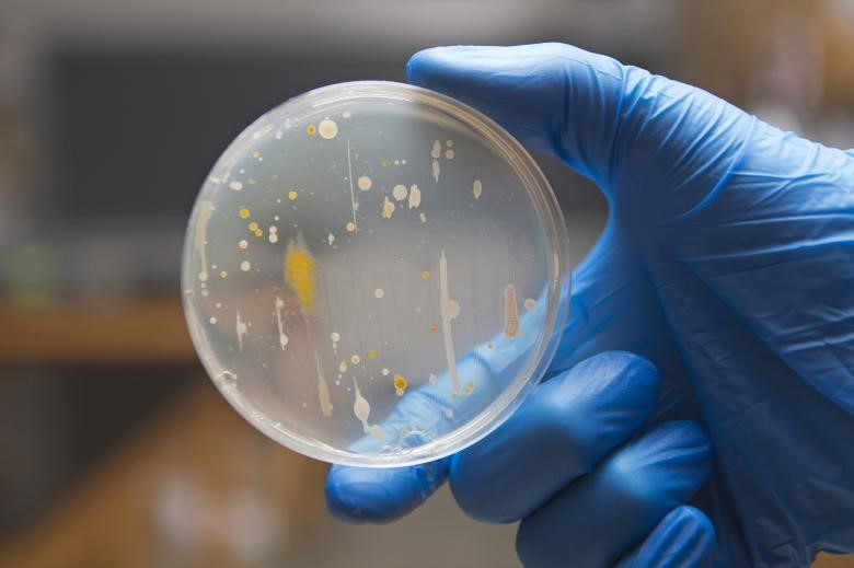 Inoculating Bacteria on Agar Plates by Streak-plating